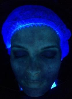 huidanalyse UV
